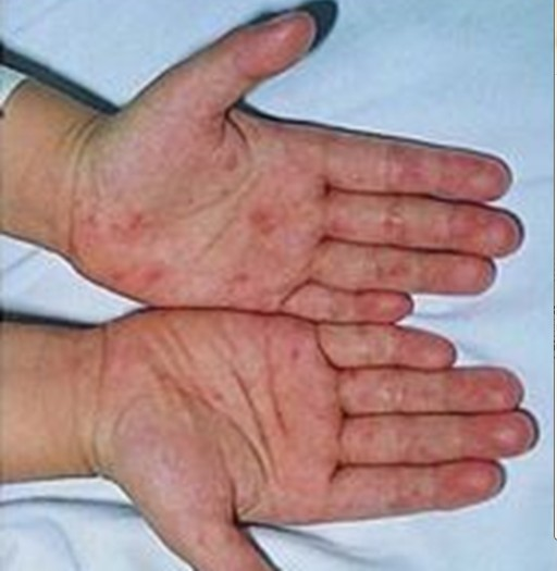 幼儿急疹的症状